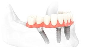 Plan Renove prótesis sobre implantes