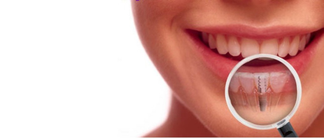 Implantes dentales en Clínica Dental Samprodent