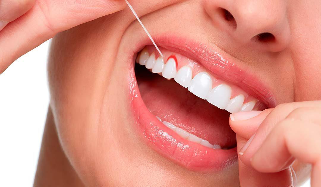 Porque sangran las encías y como evitarlo