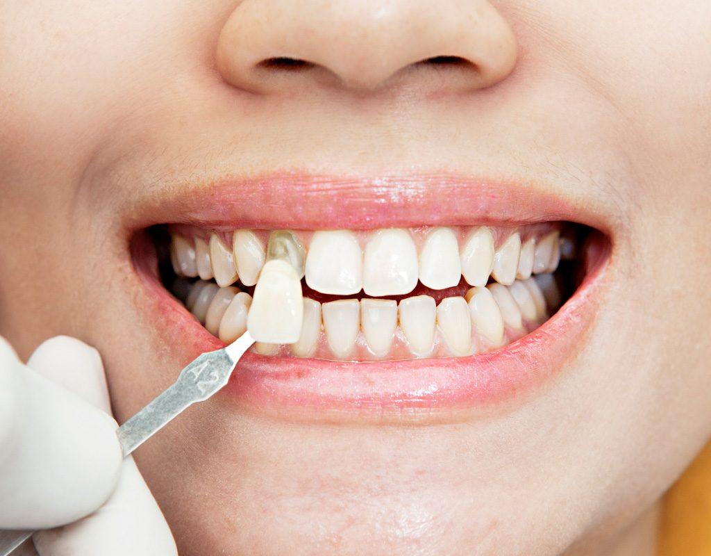¿Qué son y cuando usar carillas dentales?