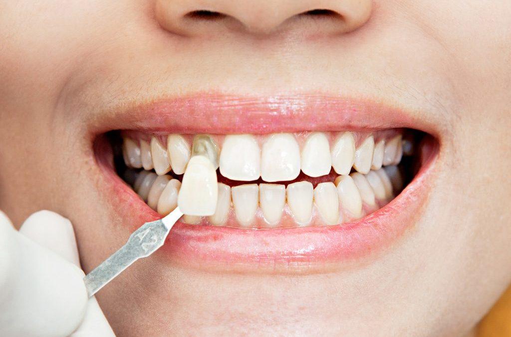 Carillas dentales: Pros y contras