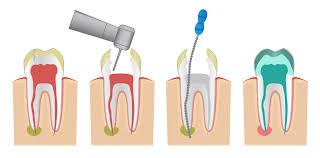 Endodoncia: Que es y para que sirve