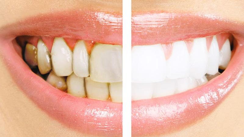 Enfermedades periodontales: Prevención y tratamiento