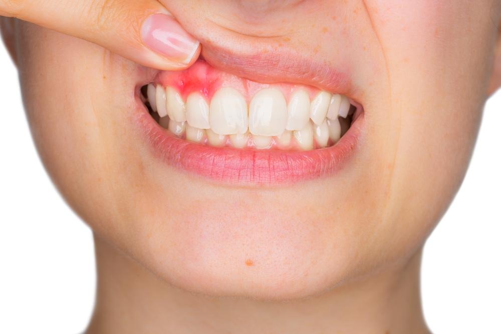 Enfermedad periodontal: Gingivitis y piorrea