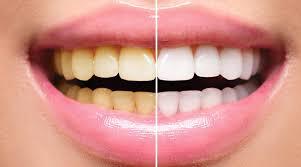 ¿Por qué se nos ponen los dientes amarillos?
