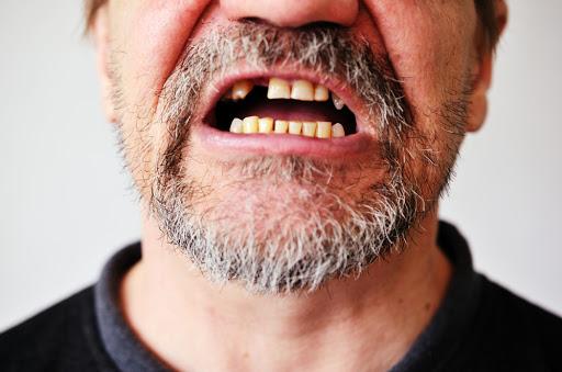 Pérdida de dientes. Causas y soluciones