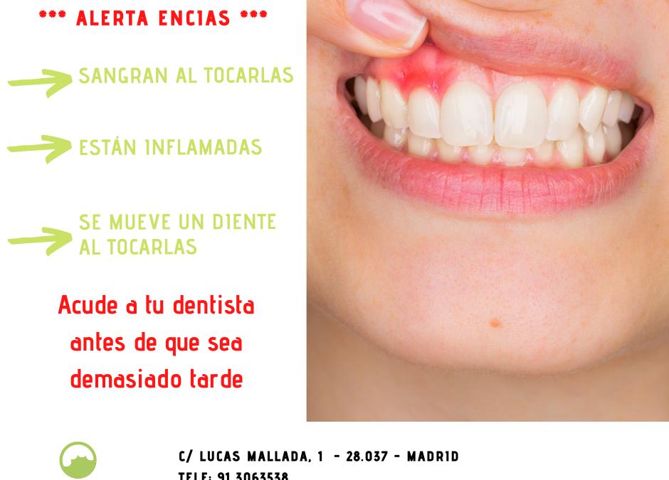Tratamiento periodontal. Que es, cuando y como hacerlo.